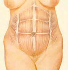 abdominop-fig-3