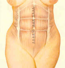 abdominopl-fig-4