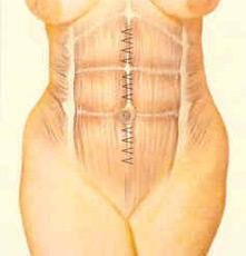 abdominopl-fig-4