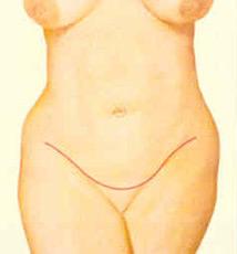 abdominopl-fig-5