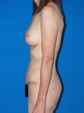 Abdominoplasty and mastopexy