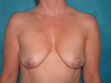mastopexy and augmentation