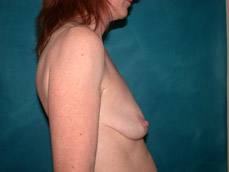 mastopexy and augmentation