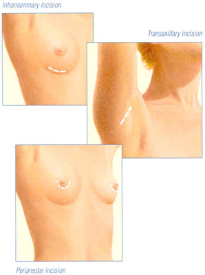breast-aug-fig-3