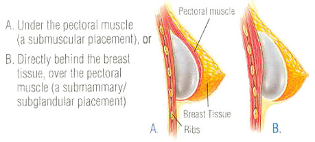 breast-aug-fig-4