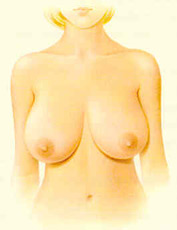 Breast Reduction - Figure 1