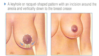Short Scar Breast Reduction