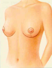 mastopexy-fig-2-after