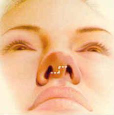 rhinoplasty-fig-3-before